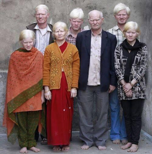 familia-albina-1